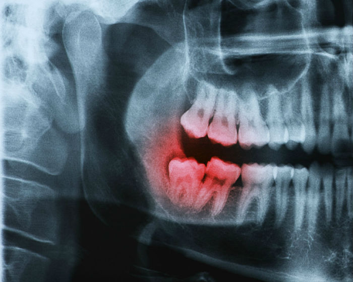 Portland oral surgery practice for impacted wisdom teeth removal