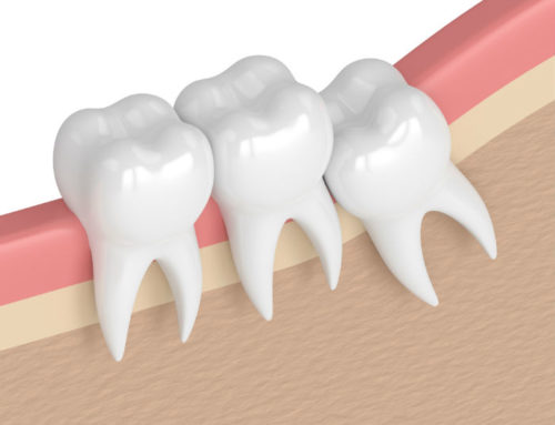 The Benefits of Wisdom Tooth Removal