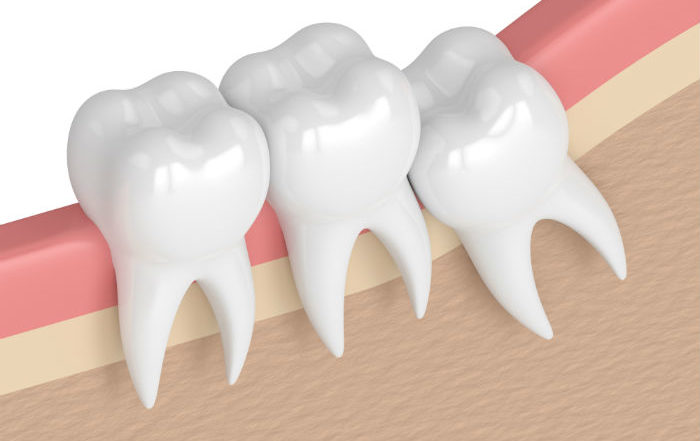 wisdom-tooth-extraction-portland-oregon