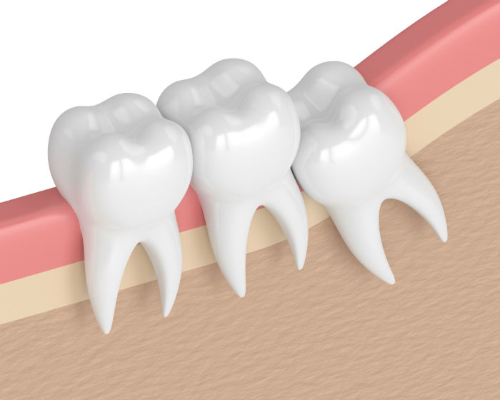 wisdom-tooth-extraction-portland-oregon